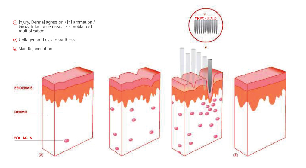 Estimulation-of-Collagen3